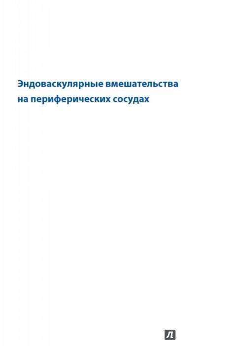 Иллюстрация 1 из 36 для Эндоваскулярные вмешательства на периферических сосудах - Юрген Шредер | Лабиринт - книги. Источник: Лабиринт