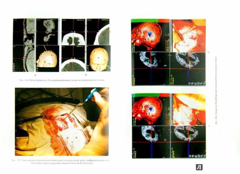 Иллюстрация 1 из 5 для Оперативные доступы в нейрохирургии. Руководство для врачей. В 2-х томат. Том 1. Голова - Гайворонский, Кондаков, Гайворонский, Гайдар | Лабиринт - книги. Источник: Лабиринт