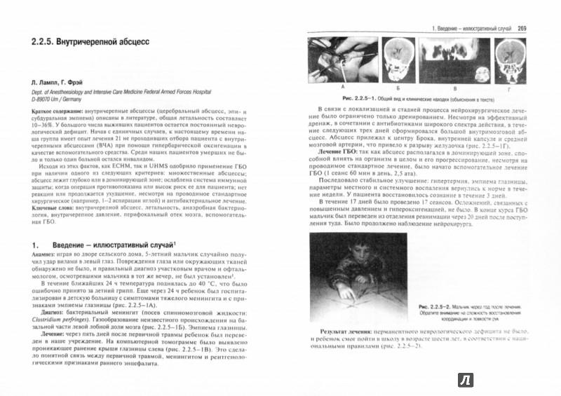 Иллюстрация 1 из 7 для Гипербарическая медицина. Практическое руководство - Д. Матьё | Лабиринт - книги. Источник: Лабиринт