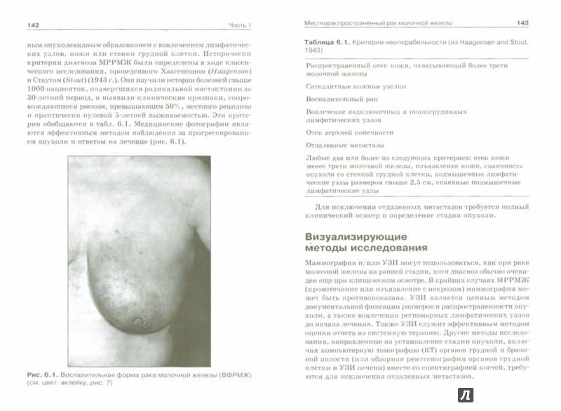 Иллюстрация 1 из 5 для Хирургическое лечение рака молочной железы и меланомы - Бленд, Андраде, Арора | Лабиринт - книги. Источник: Лабиринт