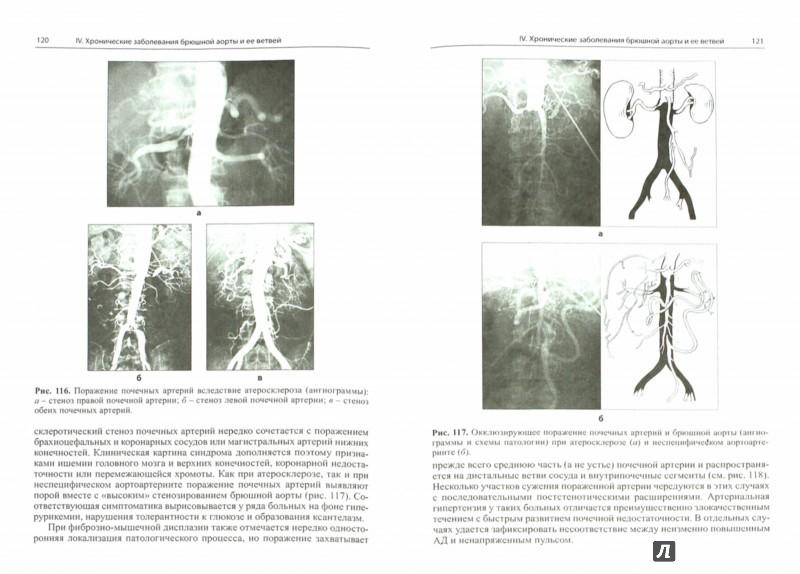 Иллюстрация 1 из 6 для Болезни артерий и вен - Евдокимов, Тополянский   Лабиринт - книги. Источник: Лабиринт