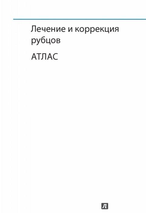 Иллюстрация 1 из 19 для Лечение и коррекция рубцов. Атлас - Игорь Сафонов | Лабиринт - книги. Источник: Лабиринт