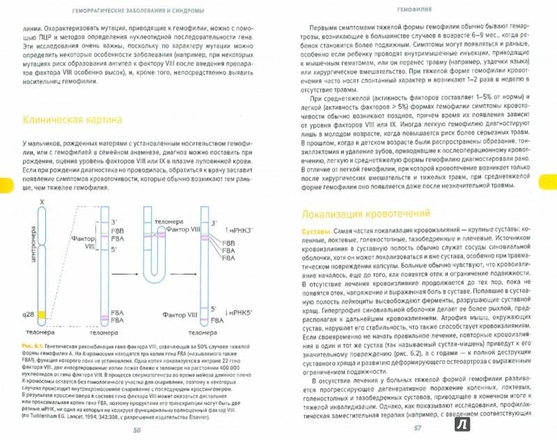 Иллюстрация 1 из 13 для Геморрагические заболевания и синдромы - Грин, Ладлем | Лабиринт - книги. Источник: Лабиринт