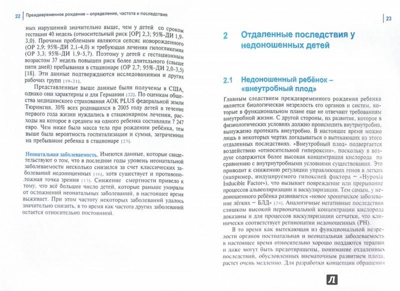 Иллюстрация 1 из 6 для Подготовка к выписке из стационара и организация амбулаторной помощи недоношенным детям - Марио Рюдигер | Лабиринт - книги. Источник: Лабиринт