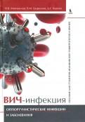 ВИЧ-инфекция. Оппортунистические инфекции и заболевания. Пособие для студентов