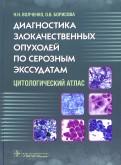 Диагностика злокачественных опухолей по серозным экссудатам. Цитологический атлас