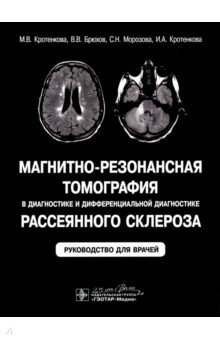 Магнитно-резонансная томография в диагностике и дифференциальной диагностике рассеянного склероза фото