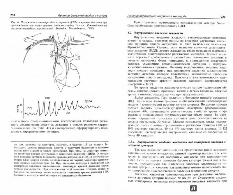 Иллюстрация 1 из 22 для Лечение болезней внутренних органов. Том 3. Книга 1. Лечение болезней сердца и сосудов - Александр Окороков | Лабиринт - книги. Источник: Лабиринт