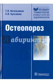 Остеопороз - Котельников, Булгакова