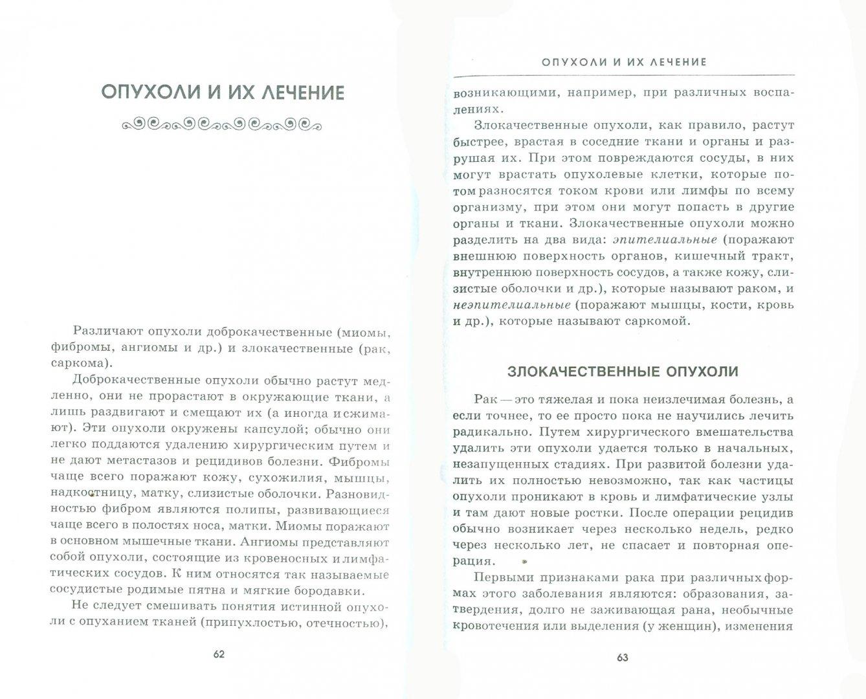 Иллюстрация 1 из 2 для Опухоли: народные средства лечения - Виталий Бойко | Лабиринт - книги. Источник: Лабиринт