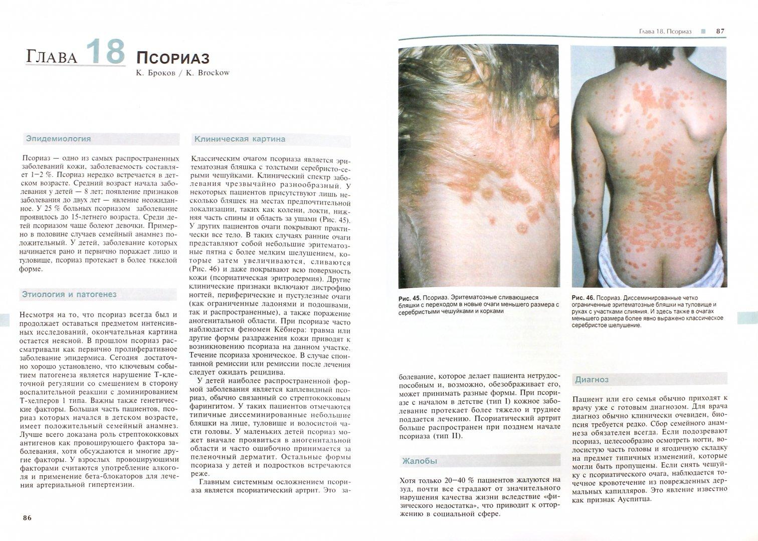 Иллюстрация 1 из 11 для Болезни кожи у детей. Диагностика и лечение - Абек, Бургдорф, Кремер | Лабиринт - книги. Источник: Лабиринт
