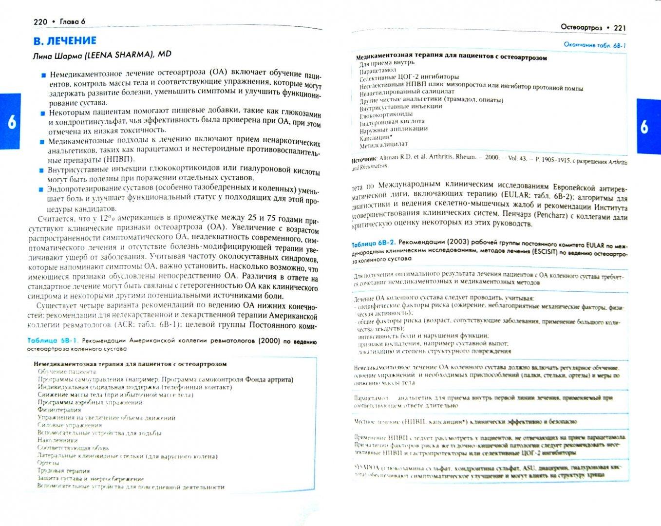 Иллюстрация 1 из 7 для Ревматические заболевания. В 3-х томах. Том 2. Заболевания костей и суставов. Руководство | Лабиринт - книги. Источник: Лабиринт