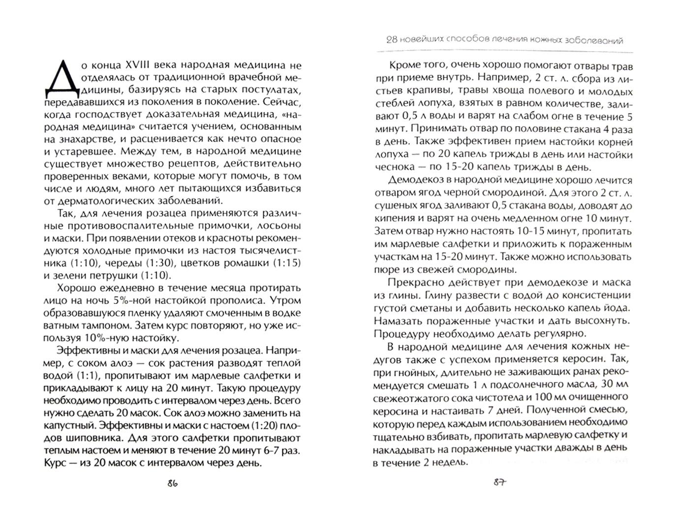 Иллюстрация 1 из 4 для 28 новейших способов лечения кожных заболеваний - Полина Голицына | Лабиринт - книги. Источник: Лабиринт