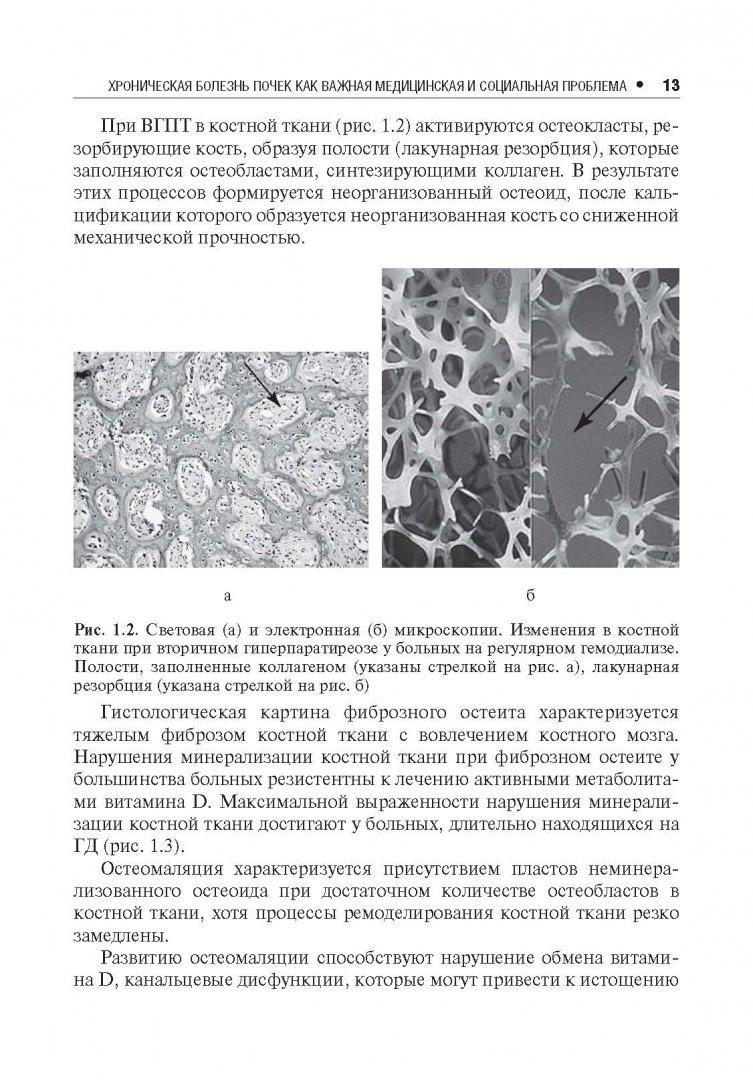 Иллюстрация 4 из 10 для Нарушения минерального и костного обмена при хронической болезни почек - Милованов, Милованова | Лабиринт - книги. Источник: Лабиринт