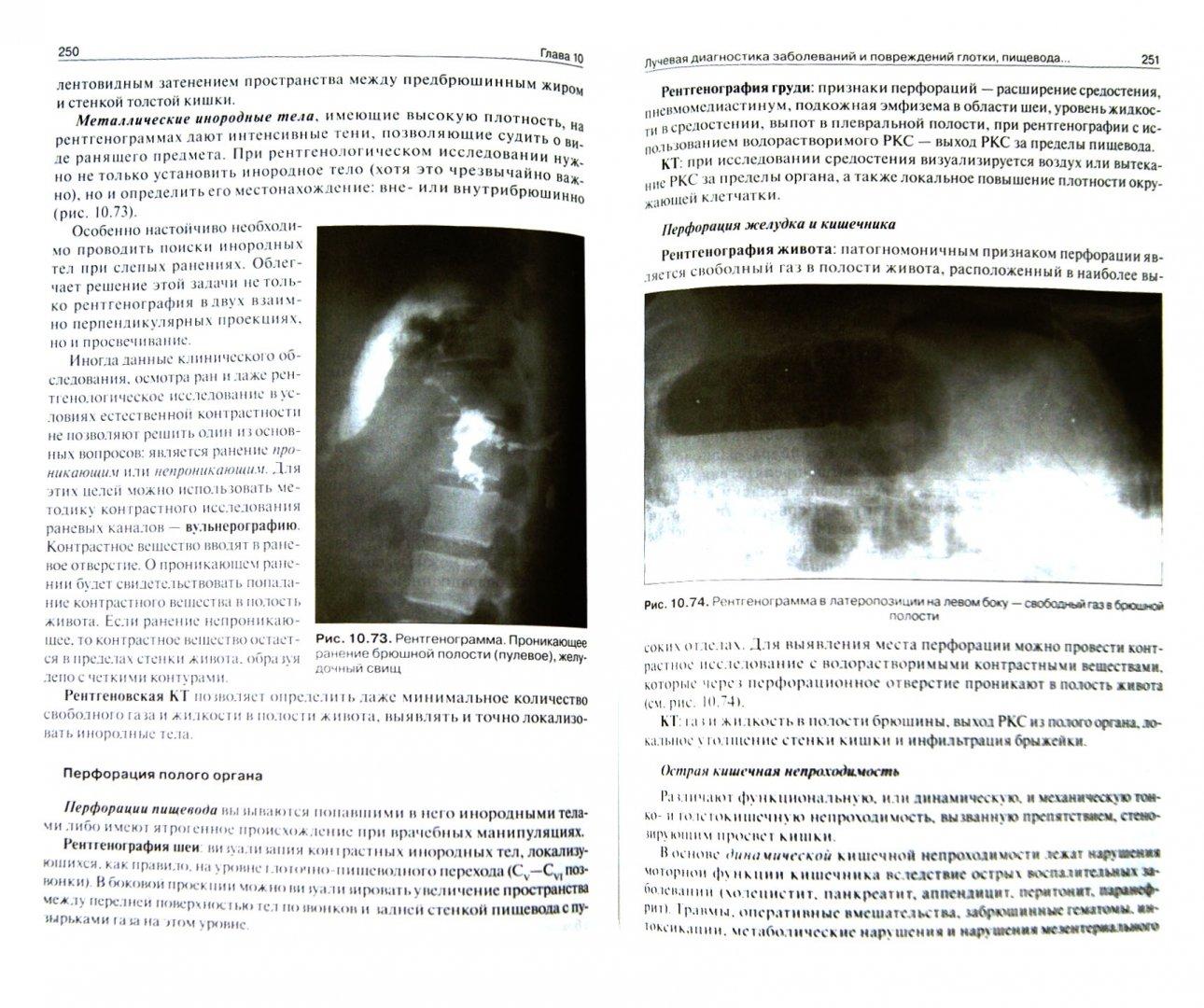Иллюстрация 1 из 14 для Лучевая диагностика. Учебник. Том 1 - Труфанов, Багненко, Акиев, Атаев | Лабиринт - книги. Источник: Лабиринт