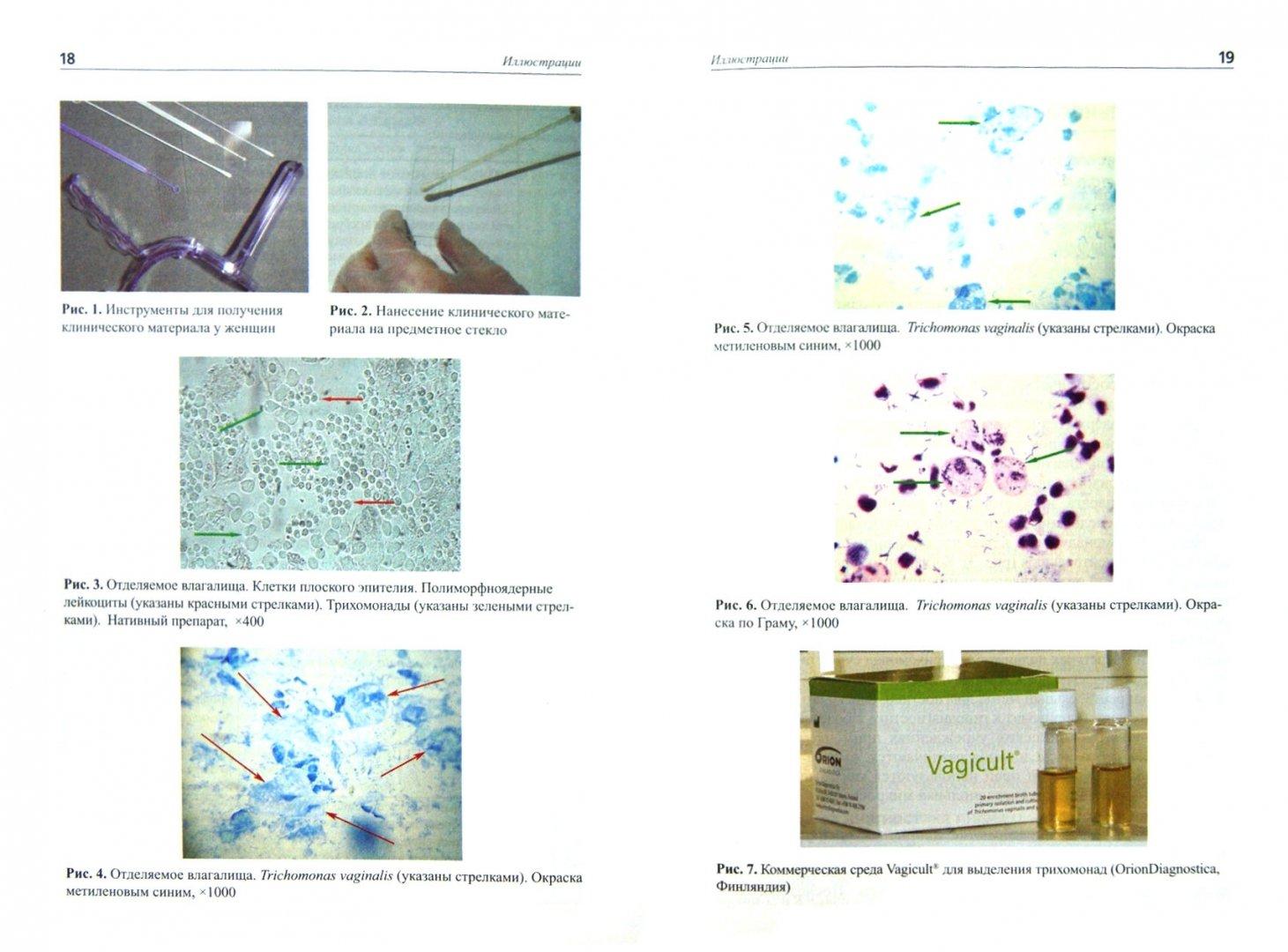 Иллюстрация 1 из 5 для Лабораторная диагностика урогенитального трихомониаза. Методические рекомендации - Савичева, Соколовский, Красносельских | Лабиринт - книги. Источник: Лабиринт
