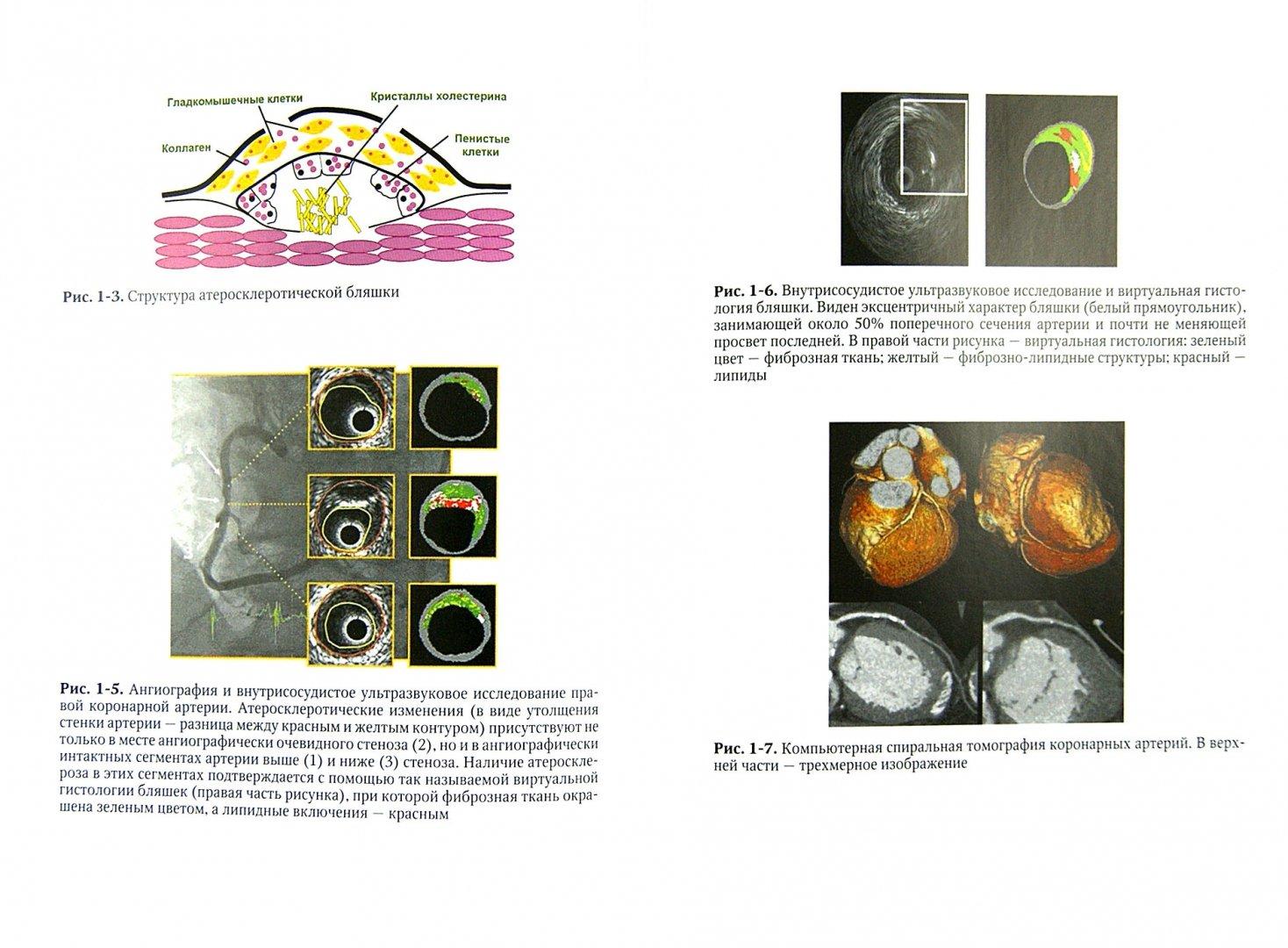 Иллюстрация 1 из 32 для Внутренние болезни. Учебник. В 2-х томах. Том 1 - Моисеев, Мартынов, Мухин | Лабиринт - книги. Источник: Лабиринт