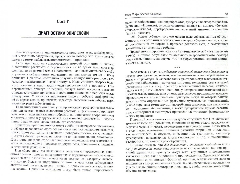 Иллюстрация 1 из 4 для Эпилепсия и ее лечение. Руководство - Гусев, Никифоров, Авакян | Лабиринт - книги. Источник: Лабиринт