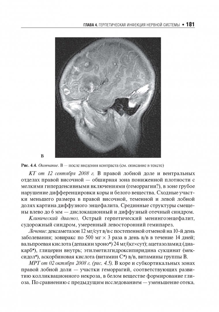 Иллюстрация 9 из 13 для Хронические нейроинфекции. Руководство - Баранова, Бойко, Завалишин, Спирин, Никитин | Лабиринт - книги. Источник: Лабиринт