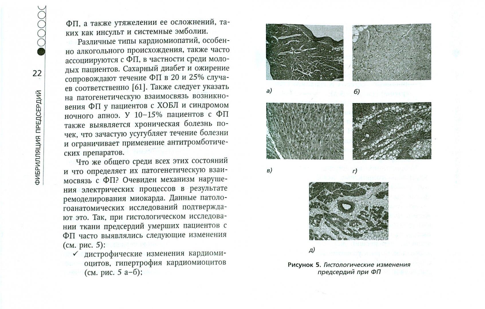 Иллюстрация 1 из 18 для Фибрилляция предсердий - Аркадий Верткин   Лабиринт - книги. Источник: Лабиринт