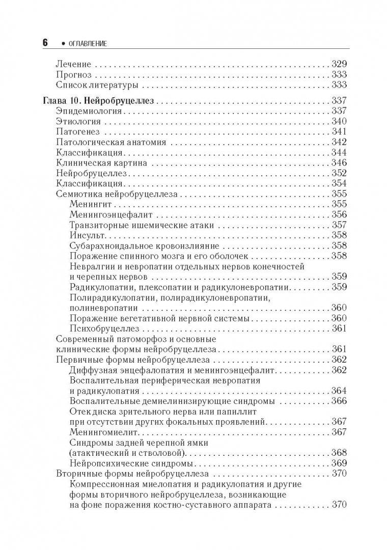 Иллюстрация 4 из 13 для Хронические нейроинфекции. Руководство - Баранова, Бойко, Завалишин, Спирин, Никитин | Лабиринт - книги. Источник: Лабиринт