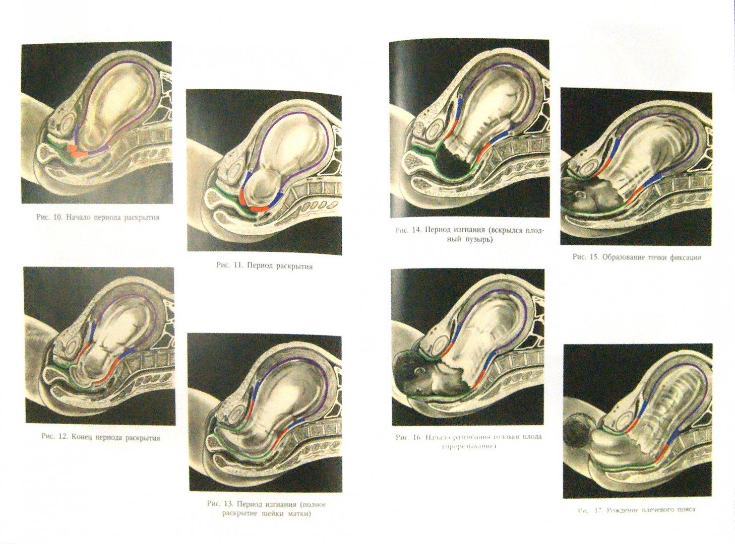 Иллюстрация 1 из 5 для Акушерство - Айламазян, Зайнулина, Новиков   Лабиринт - книги. Источник: Лабиринт